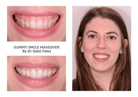gummy smile treatment cost - Veneers