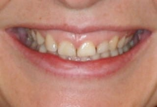 Veneers to correct gummy smiles
