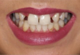 Veneers for Missing Incisors