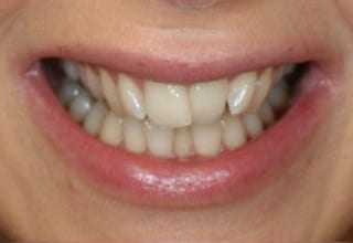 Veneers to correct a narrow smile