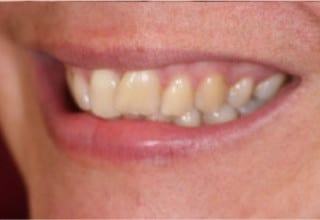 Veneers for Overlapping Teeth