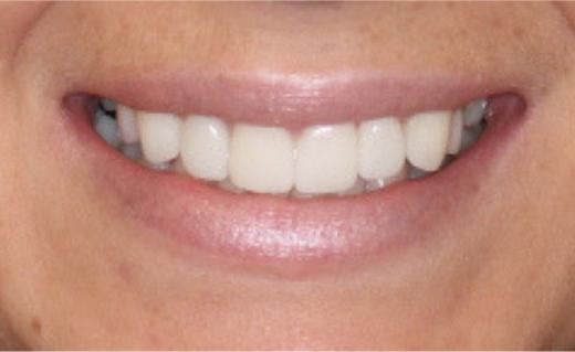Protruding Teeth Before and After Veneers