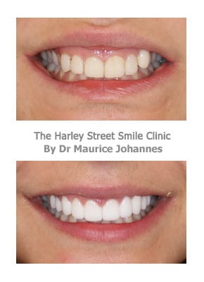 Veneers for Protruding Teeth