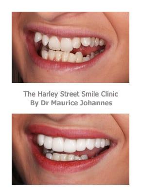 Protruding Teeth Before and After Veneers
