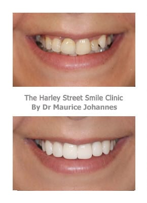 Protruding teeth - London Smile Cosmetic Dentistry Services