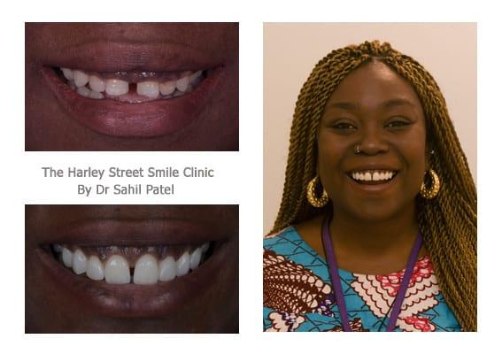 Dr. Sahil Patel  - Cosmetic Dentistry London