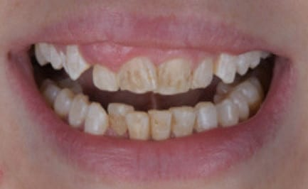 Veneers to remove Dental Stains