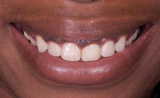 Veneers for a Gummy Smile  Before