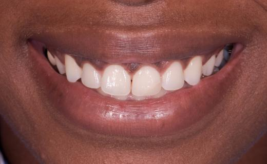 Veneers for a Gummy Smile