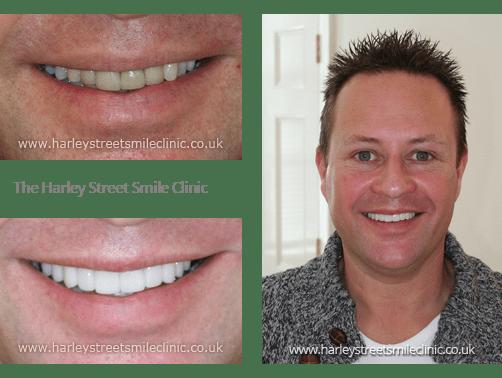 Dr Maurice Johannes - Cosmetic Dentist London