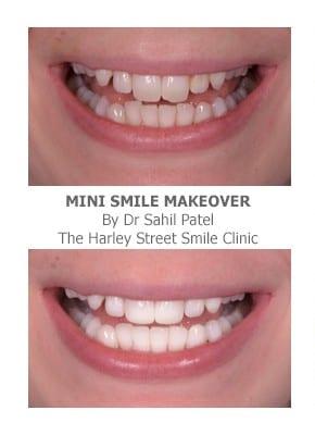 Mini Smile Makeover London - Harley Street Smile Clinic