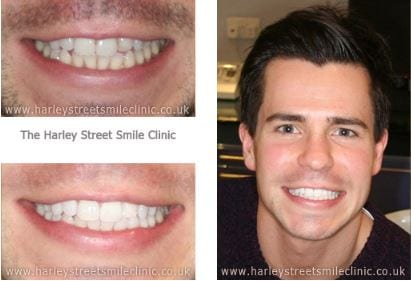 Actor - Celebrity Cosmetic Dentist London