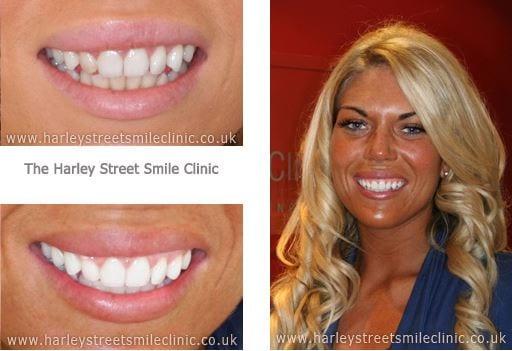 Frankie Essex - Celebrity Cosmetic Dentist London