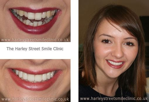 Before and After image - Veneers in London