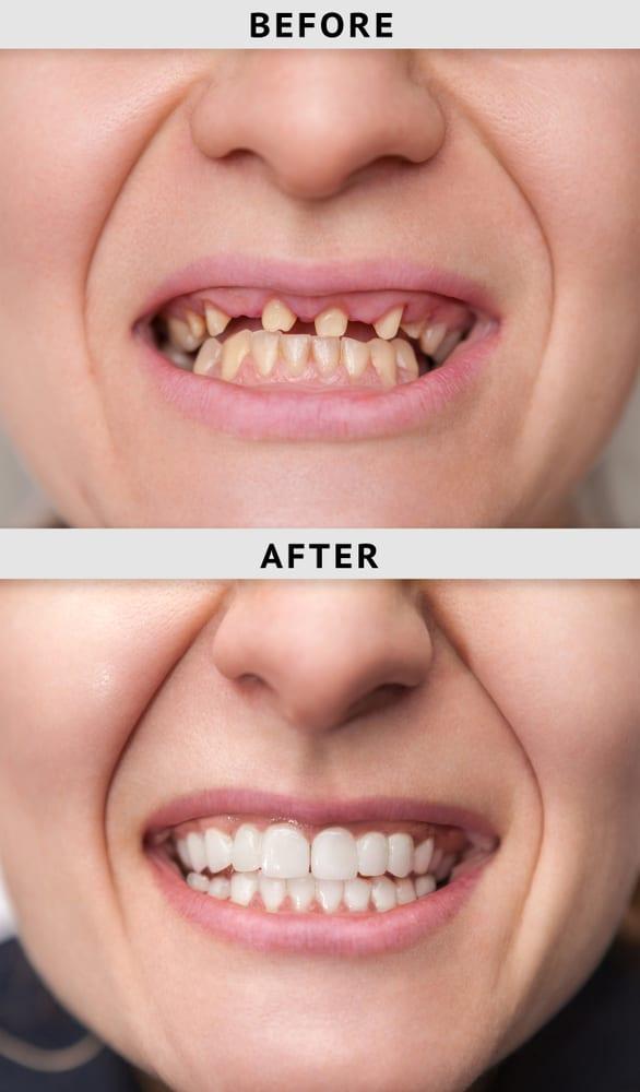 Veneers In Turkey Is It Worth The Risk Harley Street Smile Clinic