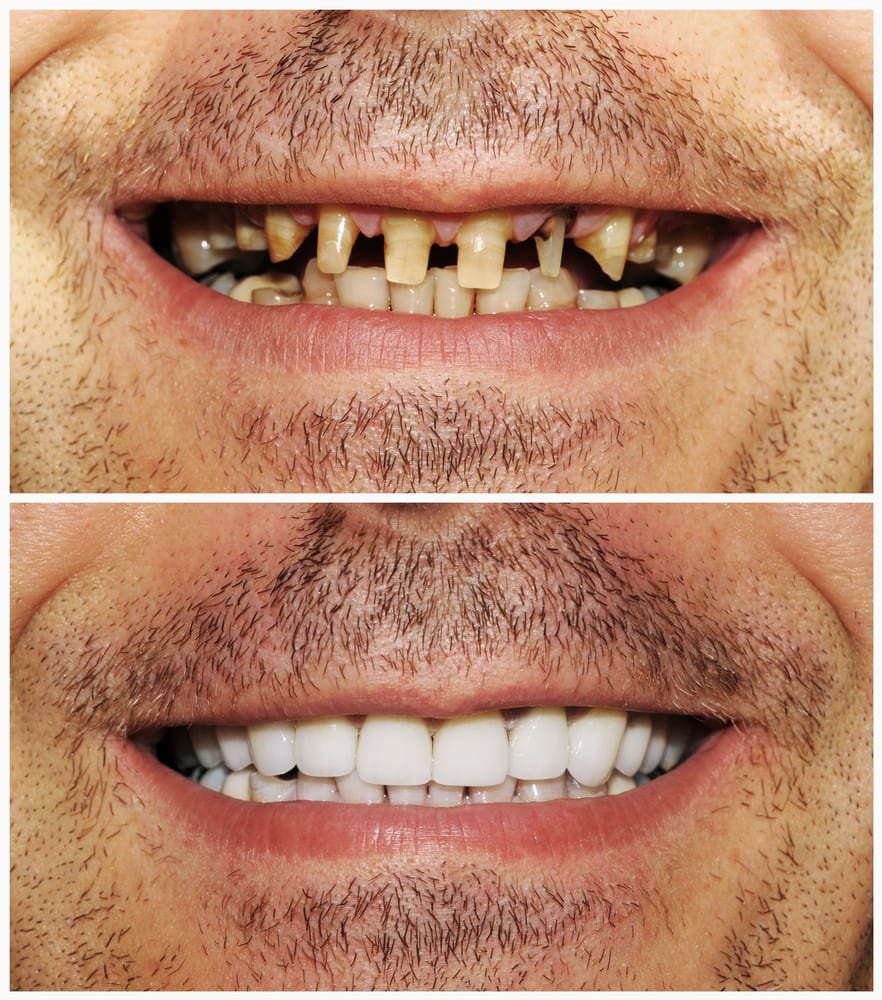 Botched veneers before and after