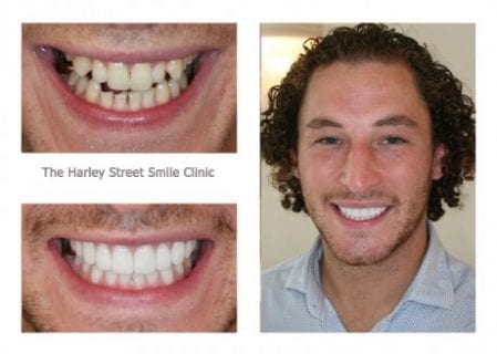 full smile makeover before and after